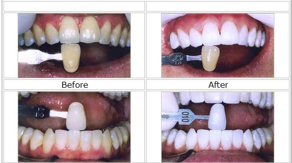 Tooth whitening in Malta Before and After Pictures