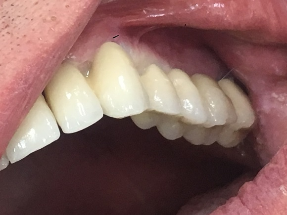 partial upper bridge on implants after at Savina Dental Clinics Malta