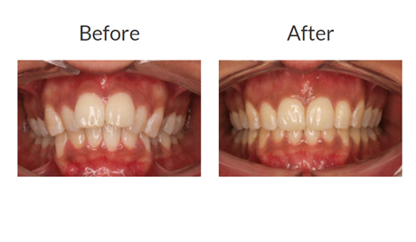 Invisalign braces before and after pictures 4
