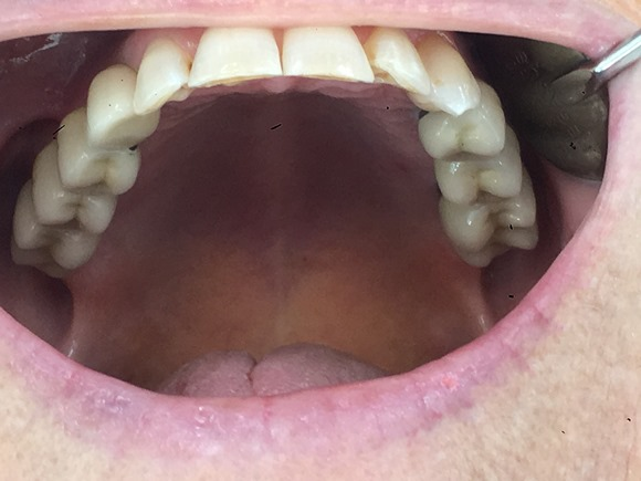 Dental implants bilateral bridges 2