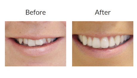 Invisalign braces before and after pictures 1