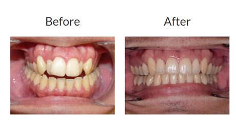Invisalign braces before and after pictures 2