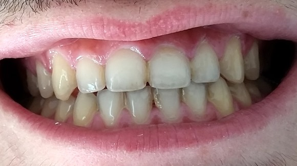 Savina Dental Veneers Top and bottom set before treatment
