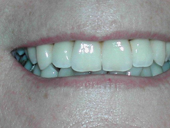 after dental bridge treatment at Savina Dental Clinic Malta and Gozo