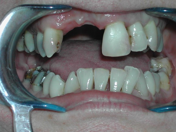 dental bridge malta treatment