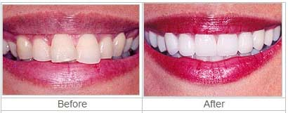 lumineers veneer treatment