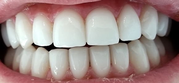 savina dental veneer treatment top and bottom sets after treatment