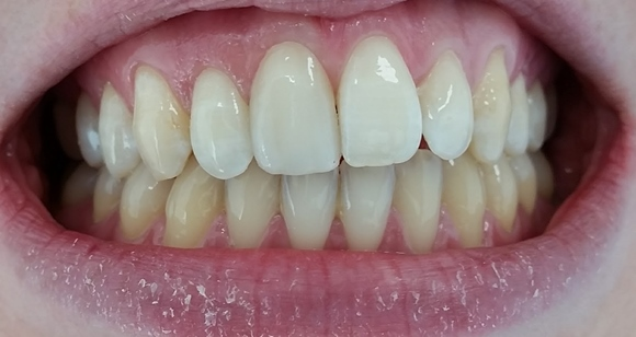 single tooth veneer treatment malta after image savina dental