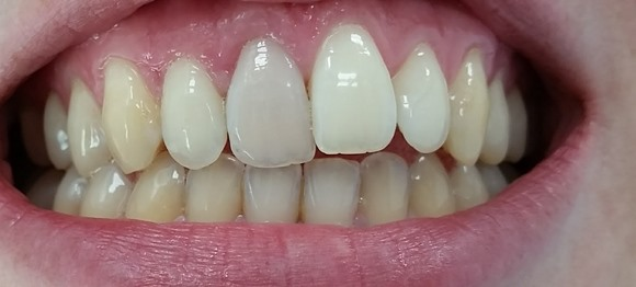 single tooth veneer treatment malta before image