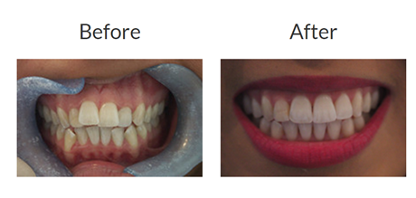 Invisalign braces before and after pictures 3