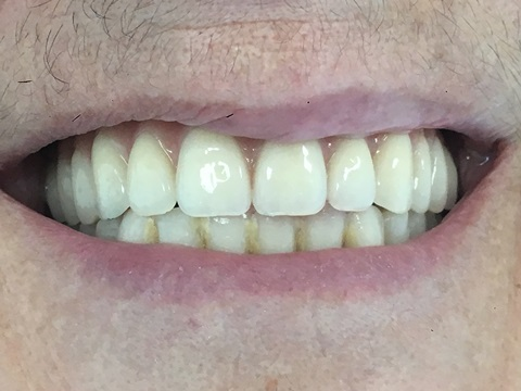 After pics of dental implants full upper bridge at Savina Dental clinics malta and gozo
