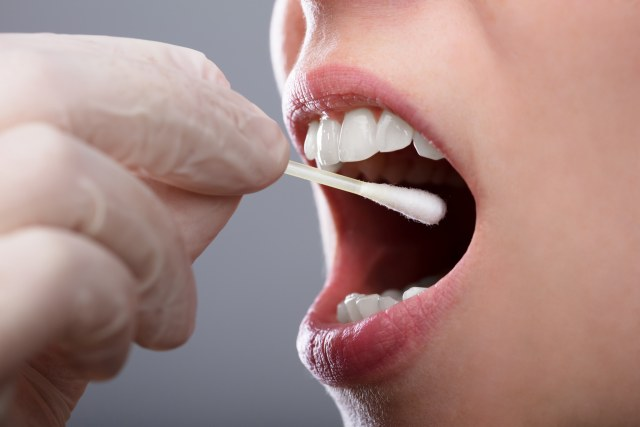 what is burning mouth syndrome - savina dental clinics malta and gozo