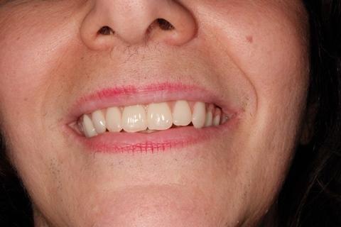 finished bridge using eagle grid dental implant protocol at Savina Dental clinics malta and gozo