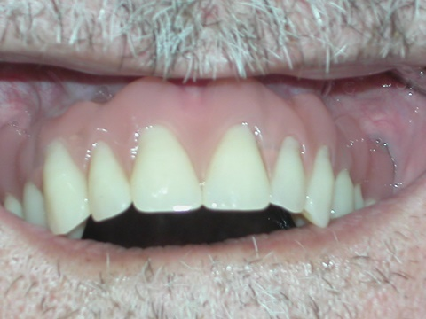 after dental dentures treatment at savina dental clinics malta and gozo