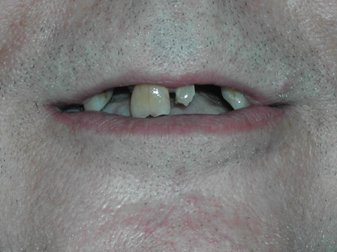 before dental dentures treatment in malta