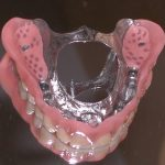Full dentures set savina clinics malta and gozo
