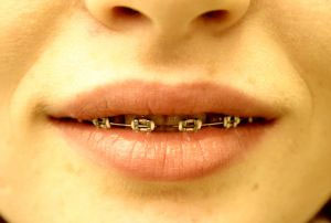 retainers and braces can prevent against gum disease and tooth decay