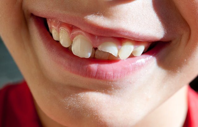 chipped front tooth treatment malta and gozo