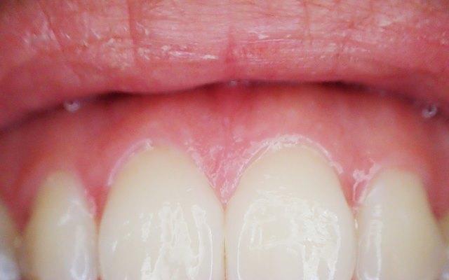 do gums grow back - Savina Clinic - Dental and Implantology Centres Malta and Gozo