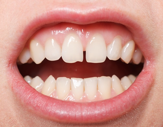 fix gap in teeth