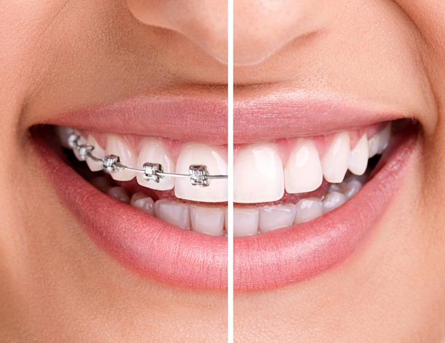 Lingual Braces Inner Braces Treatment - Savina dental clinics malta and gozo