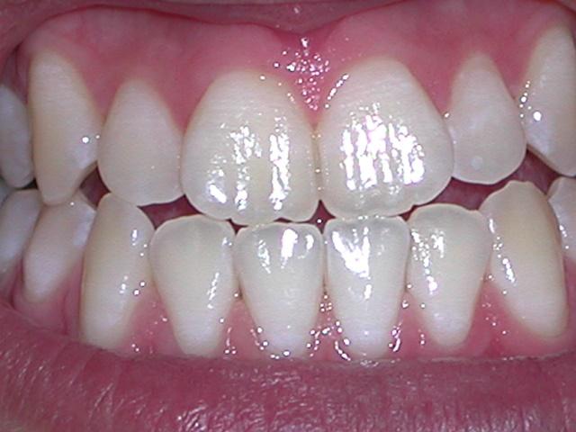 Teeth Whitening after Image Savina Dental Clinics Malta and Gozo