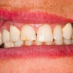 Enamel Hypoplasia (Chalky Teeth) Causes and Treatment - savina dental clinics malta and gozo