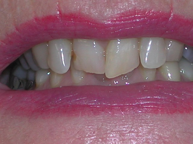 Before Invisalign Treatment at Savina Dental Clinics Malta and Gozo