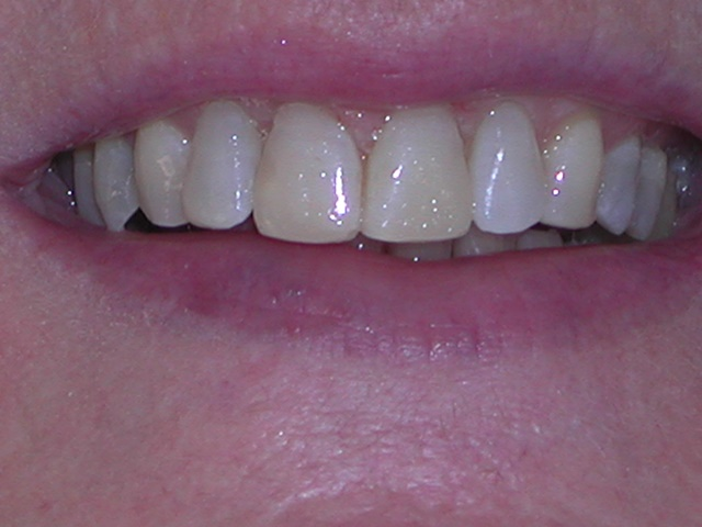 Invisalign Braces After Treatment Picture - Case Study - Savina Dental Clinics Malta and Gozo