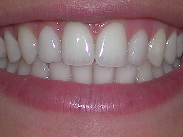Veneers After picture at Savina dental clinic malta and gozo