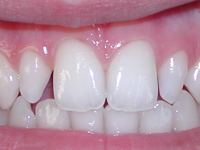 Veneers Before picture at Savina dental clinic malta and gozo
