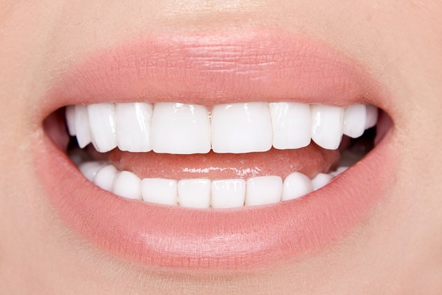 dental veneers versus bleaching - savina dental clinics malta and gozo