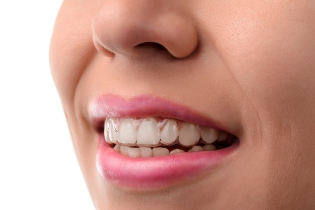 advantages of clear aligners