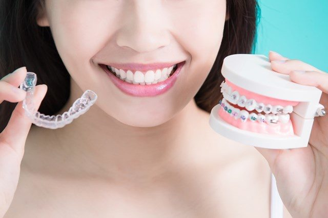 aligners versus braces - which is better?