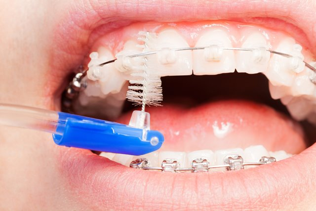 cleaning your braces