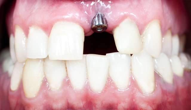 dental implants in malta front tooth treatment - dentists Malta and Gozo, Savina dental