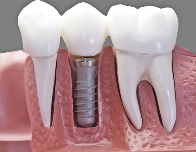 dental implants used to replace space left by removal of baby teeth in adults