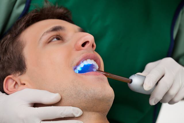 teeth bonding savina dental clinics