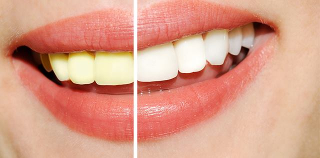 teeth whitening savina dental clinics