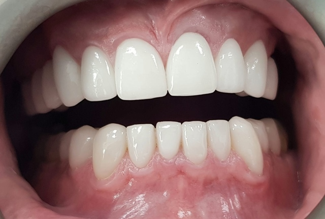 case study veneer after treatment image 1 - savina dental clinics
