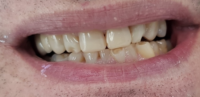 veneer case study before picture 1 - savina dental clinics