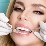 dental veneers treatment Malta - Savina dental clinics - Malta and Gozo