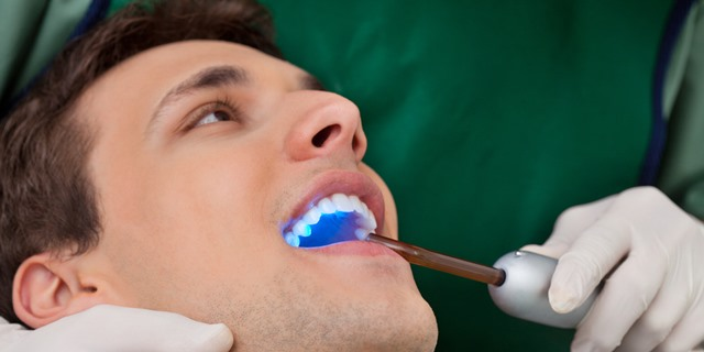 dental filling savina dental clinics malta and gozo