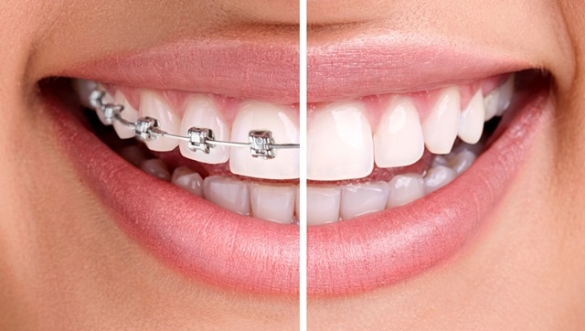 lingual braces (inner braces) treatment at Savina Dental Clinics Malta and Gozo