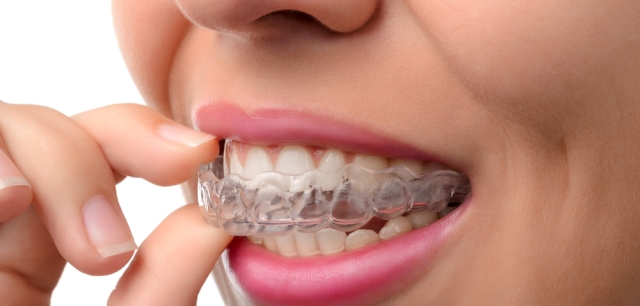 invisalign braces malta - Savina Dental Clinics