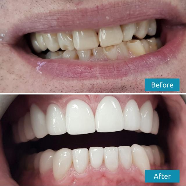 Dental Veneers Before After Case Study #2 Savina Dental Clinics - Malta and Gozo 640