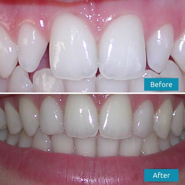 Lateral Incisor Dental Veneers Before After Case Study #5 Savina Dental Clinics - Malta and Gozo 640