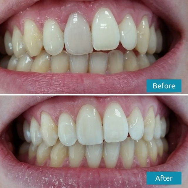 Single Tooth Dental Veneers Before After Case Study #4 Savina Dental Clinics - Malta and Gozo 640
