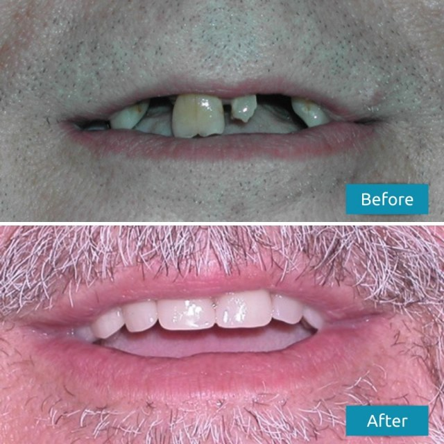dentures before after pictures savina dental clinics malta and gozo
