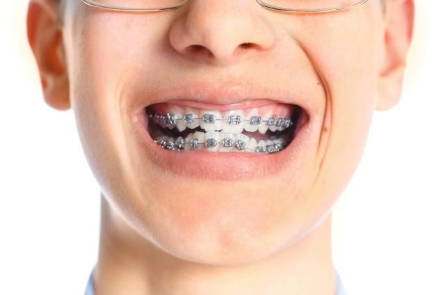 braces for children - savina dental clinics malta and gozo